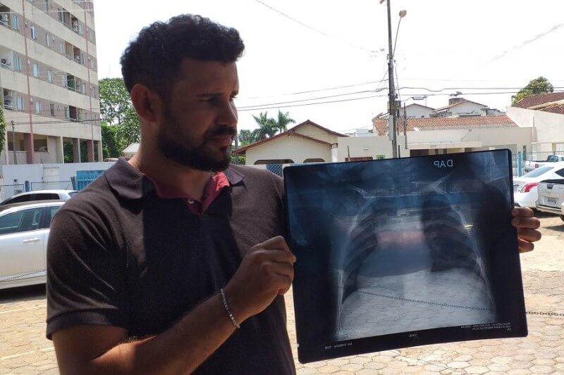 Las filas de padres preocupados en centros de salud de Porto Velho esperan recibir tratamiento para sus hijos.
